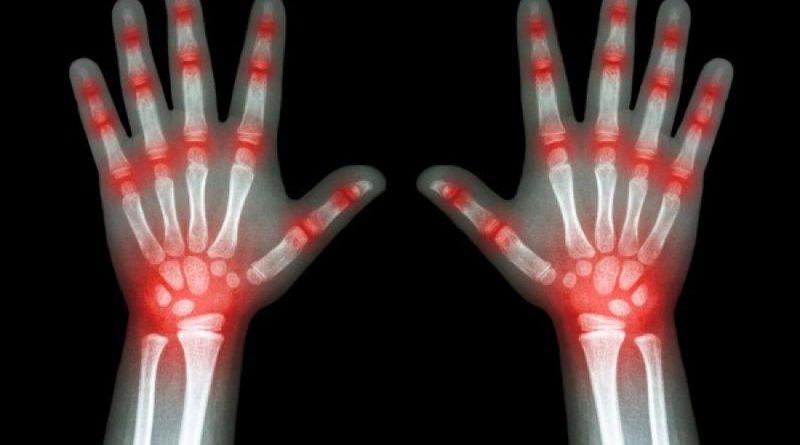 arthritida
